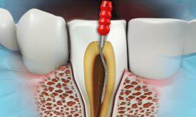 Efektywne leczenie kanałowe zęba, dzięki mikroskopowi.